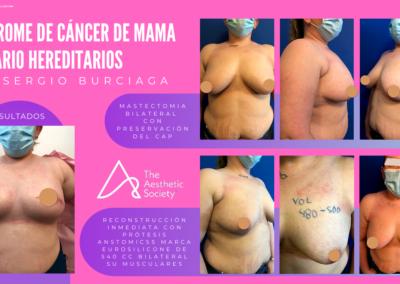 Síndrome de cáncer de mamA y ovario hereditarios