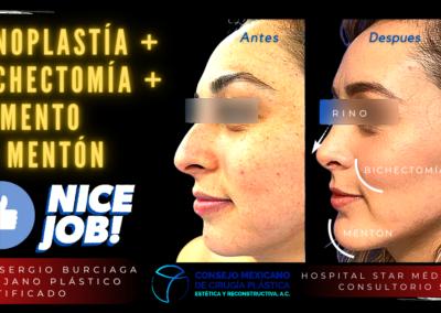 Rinoplastía + Bichectomía + Aumento de mentón