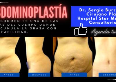 abdominiplastía